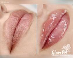 Увеличение губ мастер Наталья