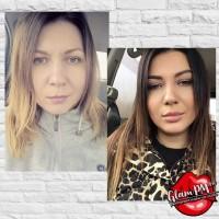 Инъекционная косметология в Луганске